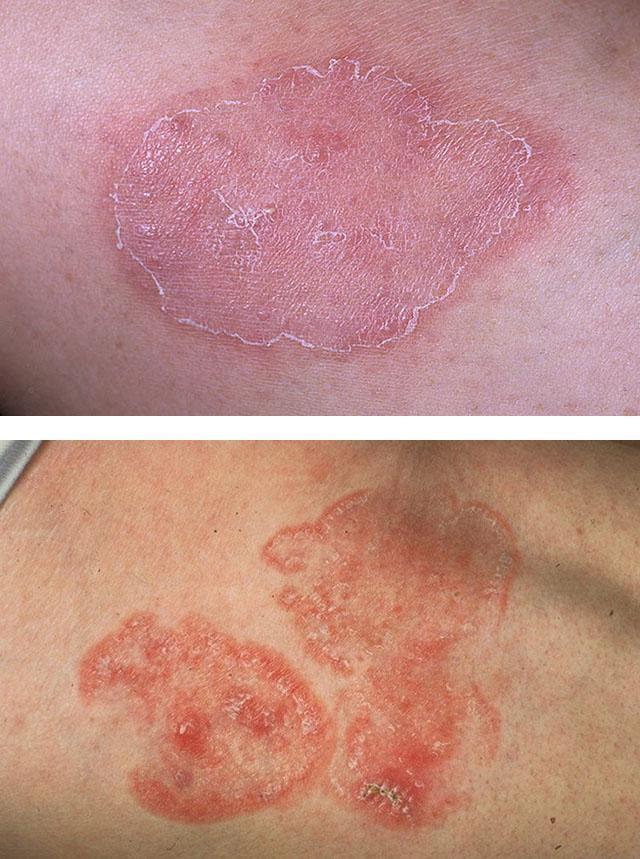 Грибок на коже на фоне атопического дерматита
