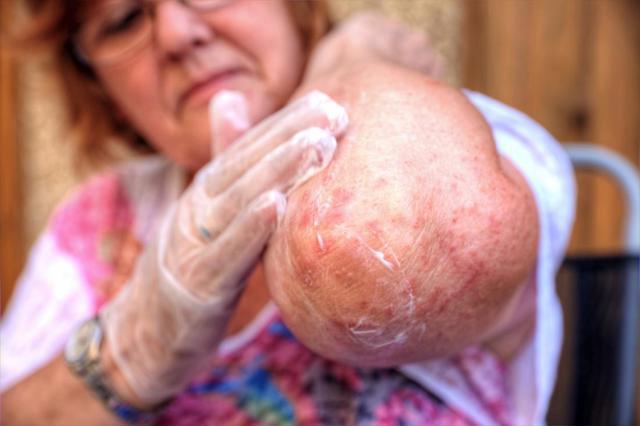 Экзема и дерматит в чем разница