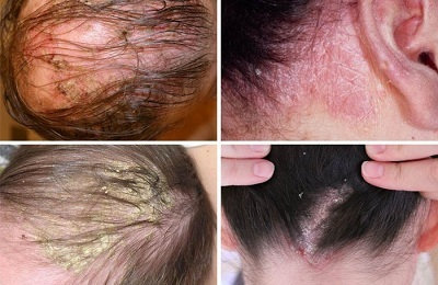 Можно ли себорейный дерматит вылечить навсегда на голове?