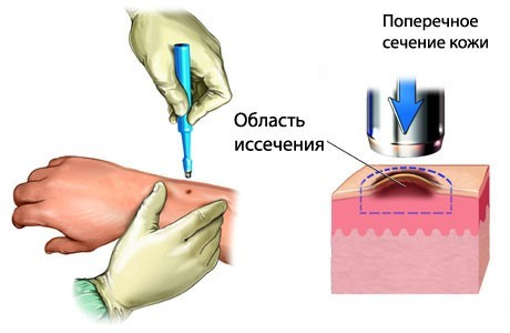 Дерматит на яичках у ребенка чем лечить