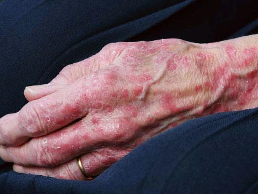Що таке дерматит і як його лікувати