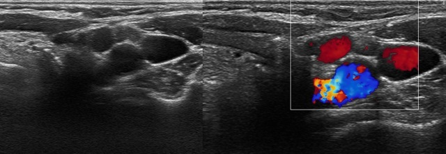 Методы диагностики воспаления заднешейных лимфоузлов