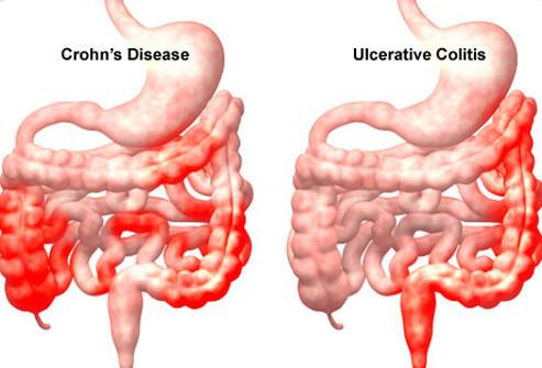 Лечение болезни Крона