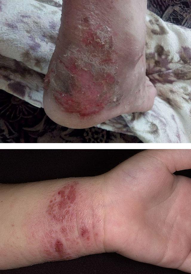 Мокнущие участки кожи при атопическом дерматите