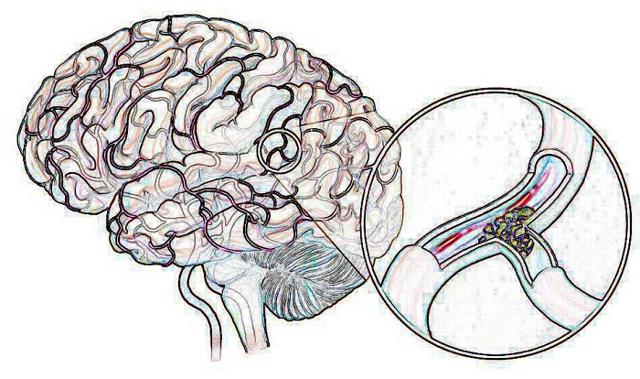 От чего возникает головокружение