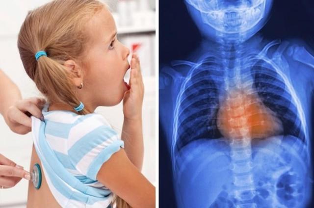 У ребенка кашель с хрипотой