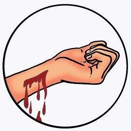 Классификация кровотечений и их симптомы