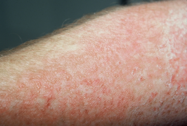 Что такое аллергический дерматит и как его лечить?