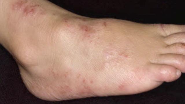Рамблер при поражении пальцев ног дерматитом можно ли промыть травами