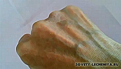 Экзема псориаз дерматит лечение народными средствами