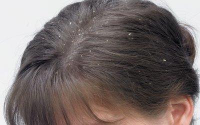Виды себорейного дерматита волосистой части головы