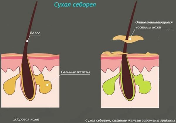 Сухой себорейный дерматит на голове лечение