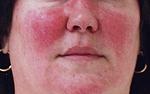 Розацеа периоральный дерматит в области нанесения препарата