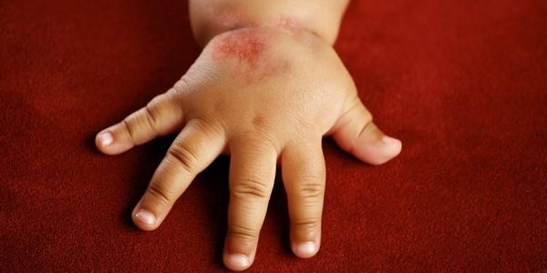 Аллергический дерматит лечение у детей народными средствами