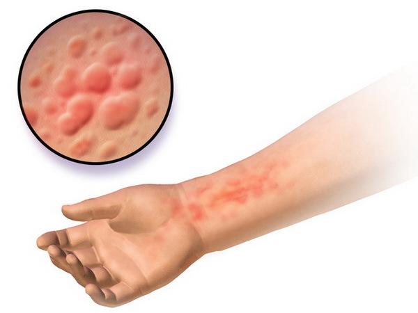 Укажите наиболее характерный признак аллергического контактного дерматита