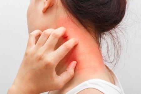 К какому врачу обращаться с атопическим дерматитом