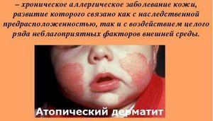 Атопический дерматит неуточненный что это такое