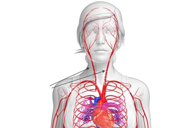Анатомические особенности сонной артерии