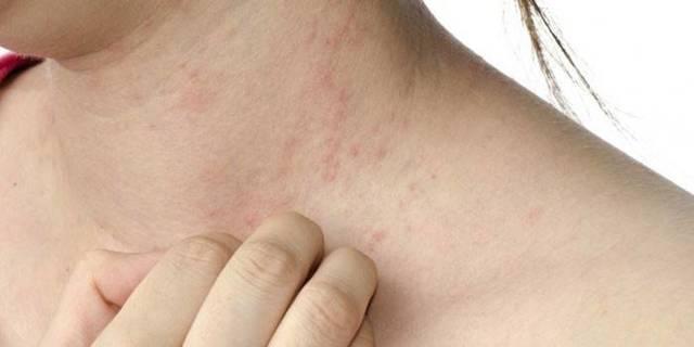 Чем лечить себорейный дерматит на голове во время беременности