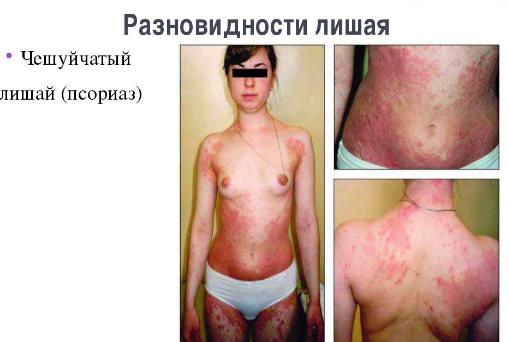 Дифференциальная диагностика псориаза и себорейного дерматита