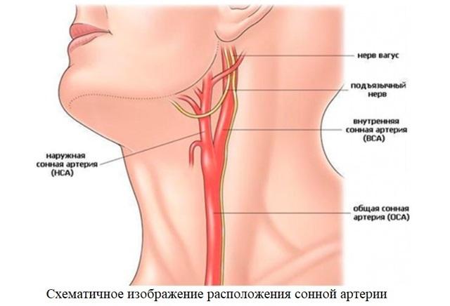Заболевания сонной артерии