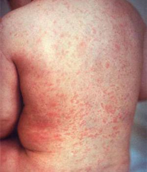 Сколько проходит аллергический дерматит у детей