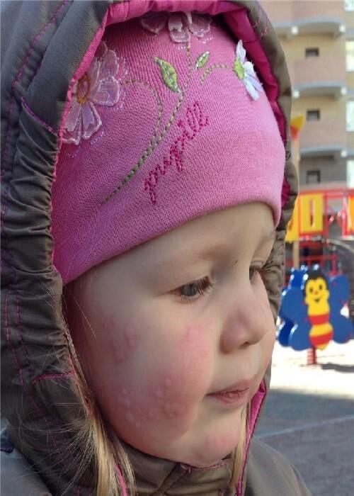Аллергический дерматит на солнце симптомы и лечение