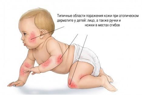 Чем лечить атопический дерматит у ребенка 5 лет