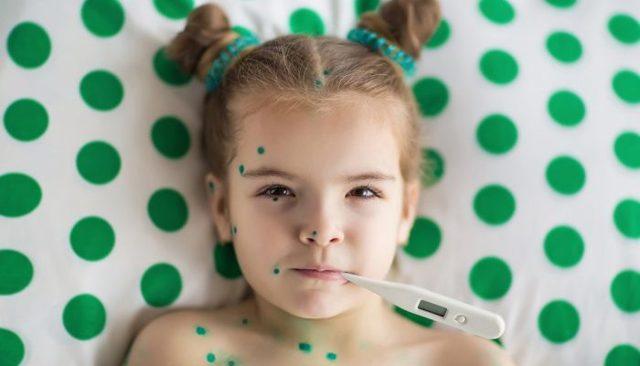 У ребенка сыпь кашель насморк
