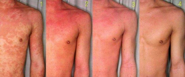 Что такое кожный дерматит и как он выглядит?