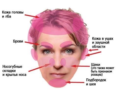 Себорейный дерматит на крыльях носа лечение