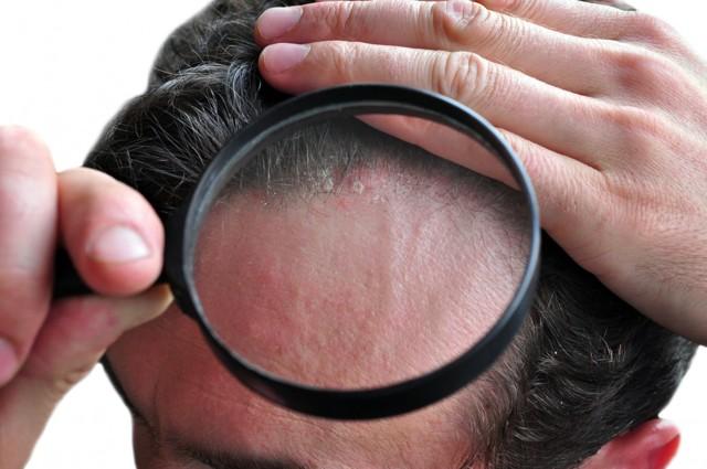 Можно ли красить волосы при себорейном дерматите волосистой части головы?