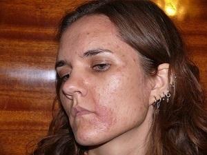 Аллергический дерматит на руках и ногах у взрослых