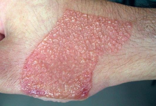 Токсико-аллергический дерматит или токсидермия