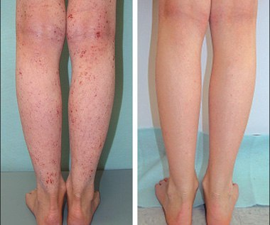 Кетотифен при атопическом дерматите у детей
