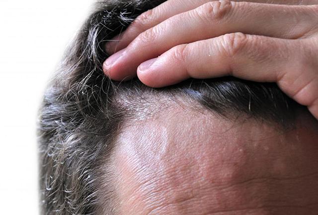 Сколько раз в неделю мыть голову при себорейном дерматите
