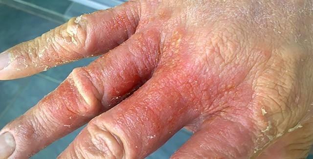 Себорейный дерматит на руках и ногах лечение