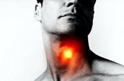 Чем остановить кашель при трахеите