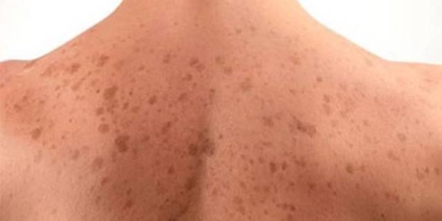 Белые пятна на коже после дерматита