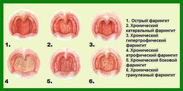 Боль в горле без кашля