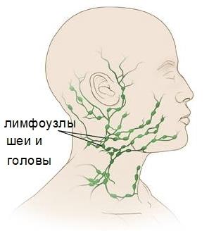 Причины воспаления шейных лимфоузлов
