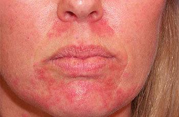 Как и чем лечить дерматит на теле у взрослого?