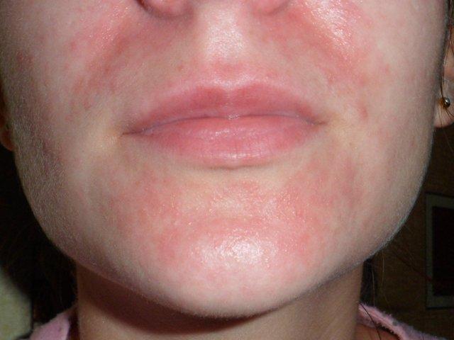 Атопический дерматит на щеках у взрослого причины и лечение