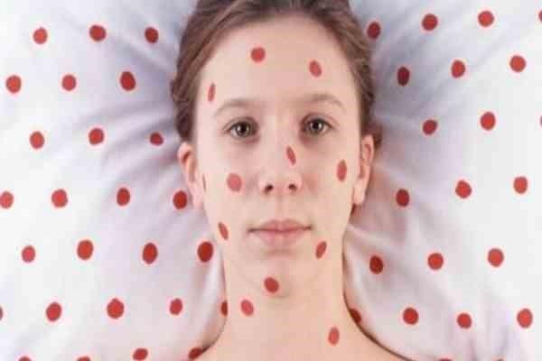 Как избавиться от аллергического дерматита навсегда?
