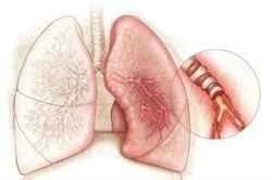 После ингаляции с беродуалом кашель