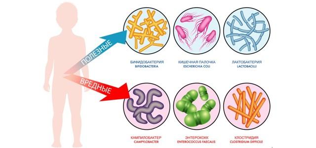 Симптомы дисбактериоза кишечника у грудного ребенка