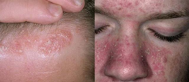 Кто вылечился от себорейного дерматита и чем