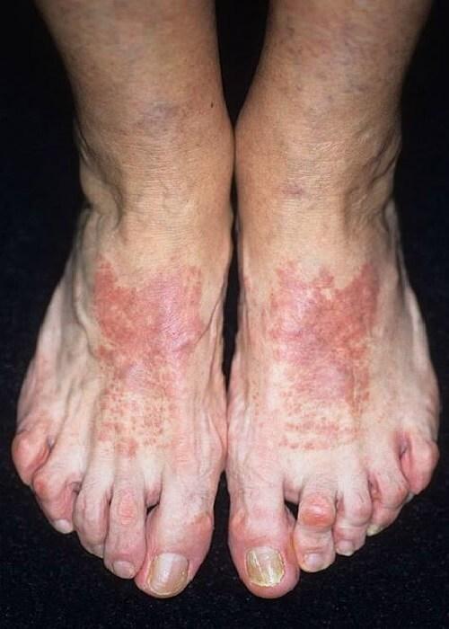 Дерматит на ногах у ребенка причины и лечение
