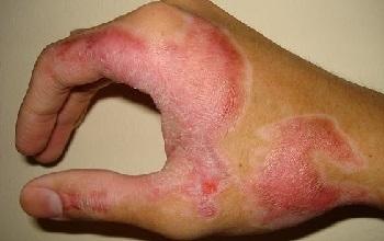 После ожога 2 степени на голове развился дерматит как лечить