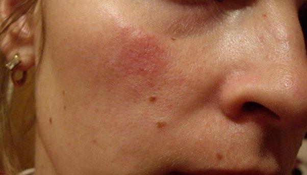 Диета при себорейном дерматите волосистой части головы